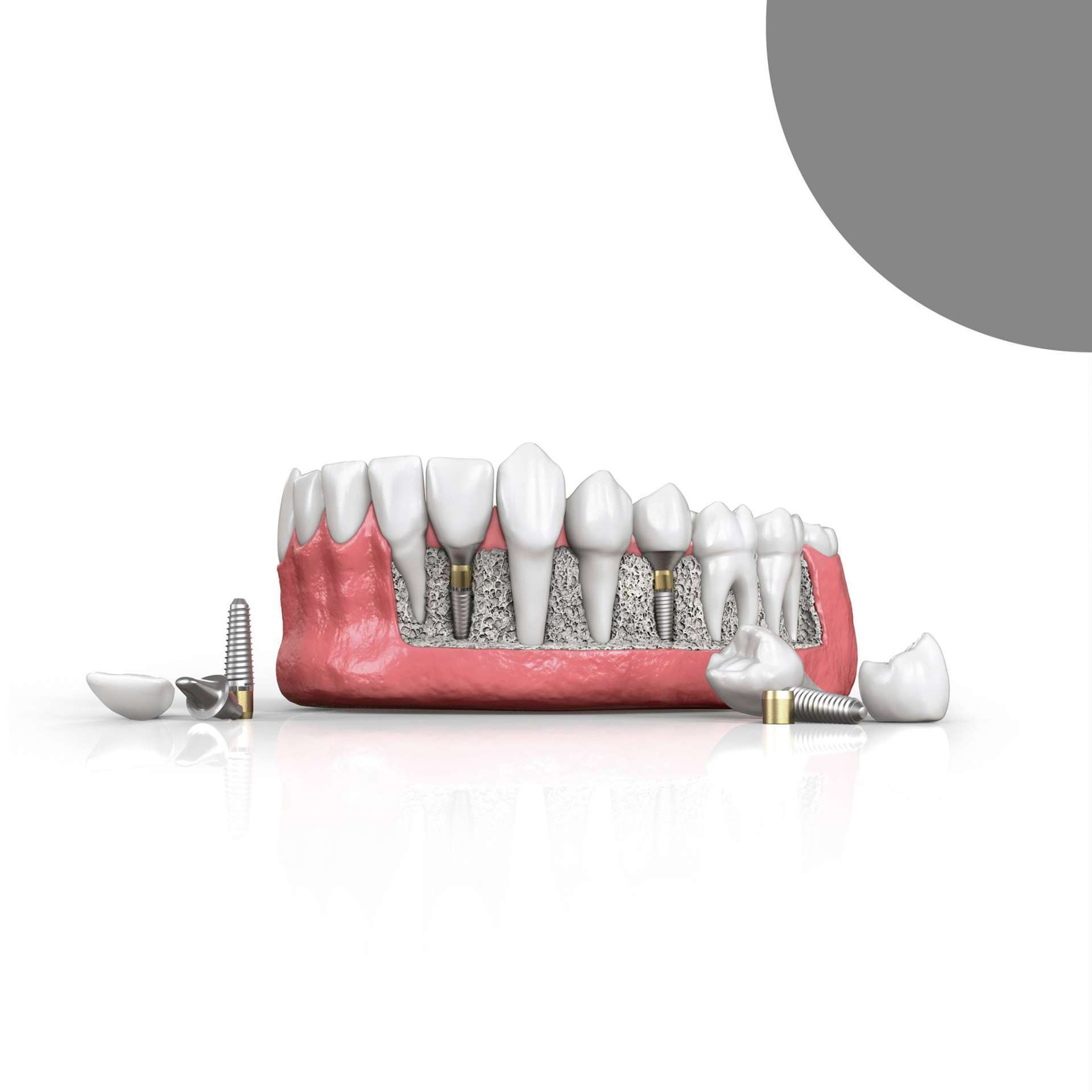 Dental implants - the ideal solution if you are missing one or more teeth